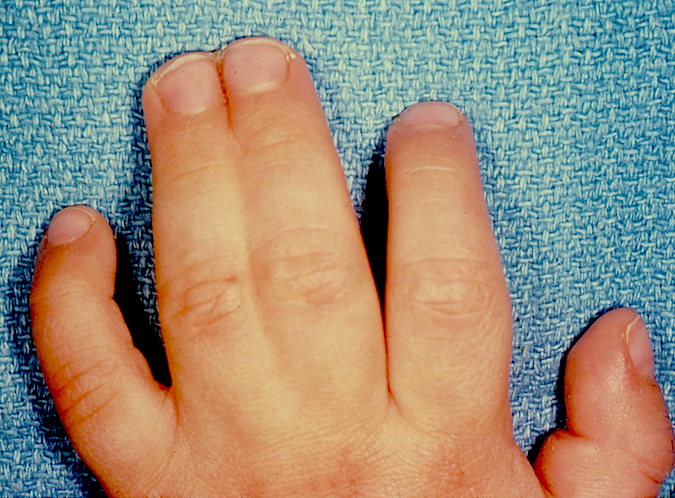 Classic Simple Syndactyly of left long and ring fingers.