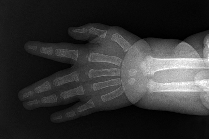 X-ray of right III-IV complete simple syndactyly